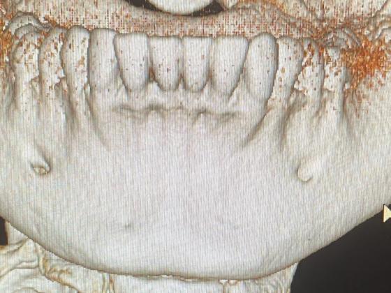 dentalscan ricostruzione dentatura